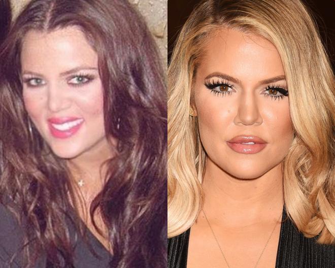 Kim Kardashian tung ảnh... hại hội chị em: Bóc mẽ nhan sắc của Kylie - Kendall, điển hình kiểu Instagram ai người đấy đẹp! - ảnh 7