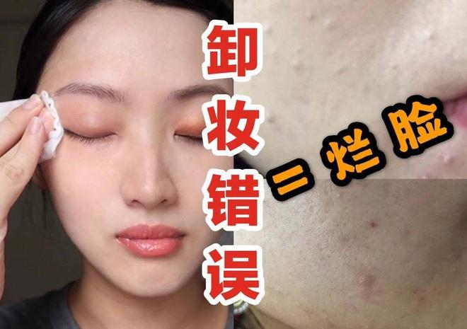 Beauty blogger cảnh báo: Chị em đang huỷ hoại chính làn da của mình ngay từ bước tẩy trang - ảnh 3