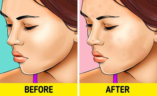 Quên tẩy trang trước khi đi ngủ: có 7 vấn đề sẽ xảy đến với sức khỏe lẫn nhan sắc của bạn - Ảnh 2.