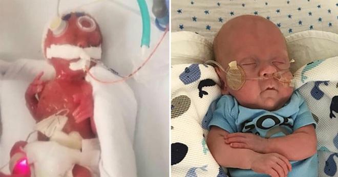 Bé sinh non chỉ nhỏ như bàn tay từng bị 15 bệnh viện từ chối tiếp nhận vì không ai tin có thể sống sót 2 năm trước bây giờ ra sao? - ảnh 3