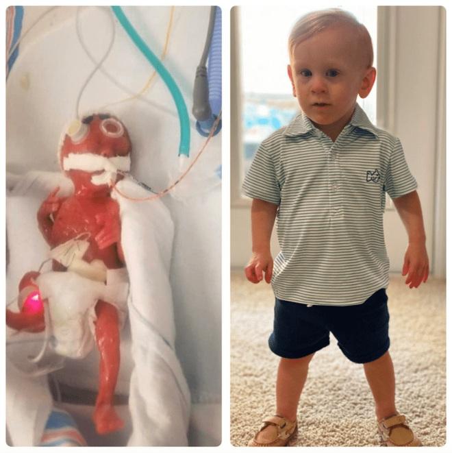 Bé sinh non chỉ nhỏ như bàn tay từng bị 15 bệnh viện từ chối tiếp nhận vì không ai tin có thể sống sót 2 năm trước bây giờ ra sao? - ảnh 8