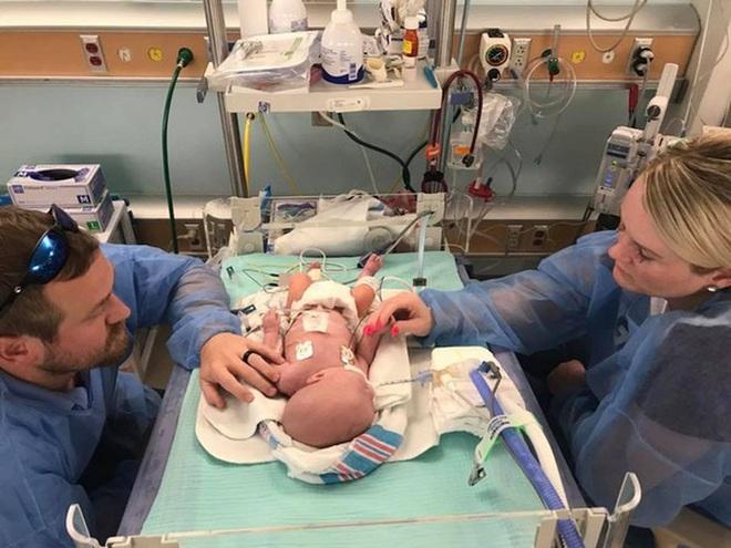 Bé sinh non chỉ nhỏ như bàn tay từng bị 15 bệnh viện từ chối tiếp nhận vì không ai tin có thể sống sót 2 năm trước bây giờ ra sao? - ảnh 6