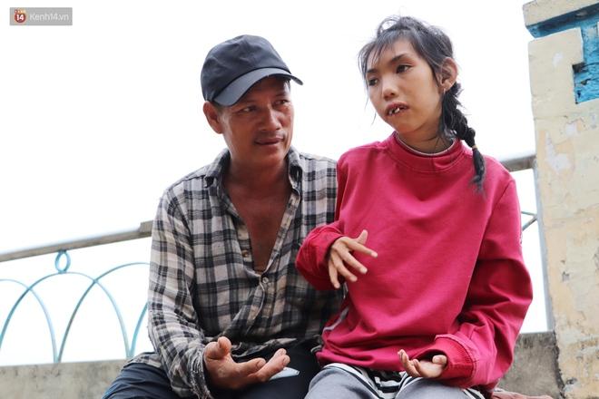 Bé gái bị teo não theo cha đi lượm ve chai ở bờ sông Sài Gòn: Ngồi chờ ba xíu, lát ba quay lại cõng con lên ghe nghen - ảnh 3