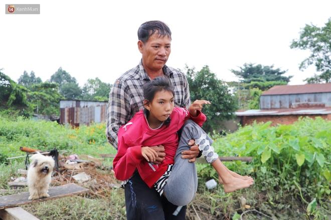 Bé gái bị teo não theo cha đi lượm ve chai ở bờ sông Sài Gòn: Ngồi chờ ba xíu, lát ba quay lại cõng con lên ghe nghen - ảnh 17