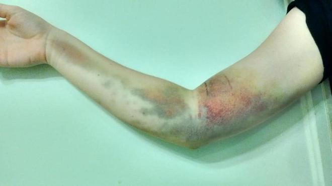 Đi hiến máu, cô gái 17 tuổi mắc phải căn bệnh mãn tính hiếm gặp khiến tay phải bị tàn phế - ảnh 1