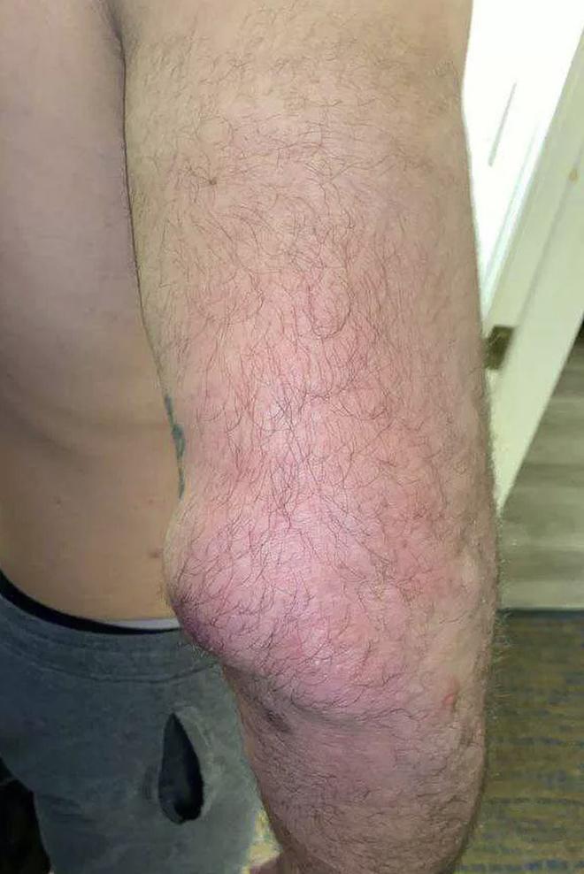 Nhà cựu vô địch MMA bỗng phải nhận trận thua thất vọng, nhiều người trách móc cho đến khi nhìn thấy chấn thương kinh hoàng trên tay anh này - ảnh 2