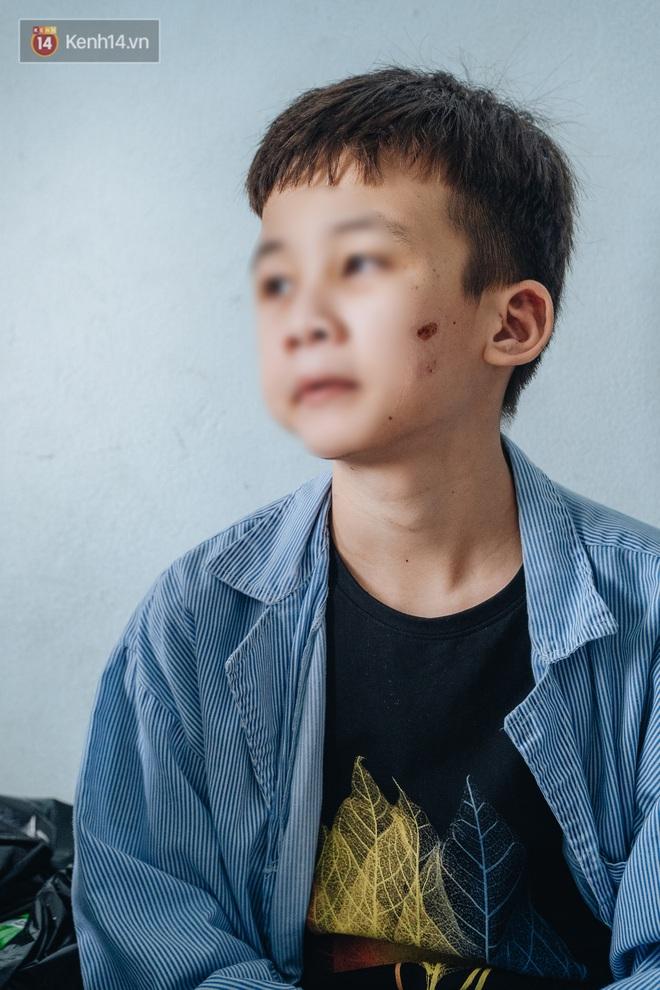 Người thân xót xa khi gặp lại cậu bé 15 tuổi bị chủ quán bánh xèo bạo hành, hy vọng cháu sớm về quê tiếp tục việc học - ảnh 5