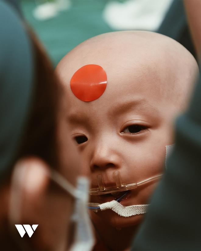 """6 tháng sau ca phẫu thuật tách rời Song Nhi: """"Ê-kíp thỏa mãn khi đã chạm tới ước mơ, trả lại cho 2 con một cuộc đời lành lặn"""" - Ảnh 14."""