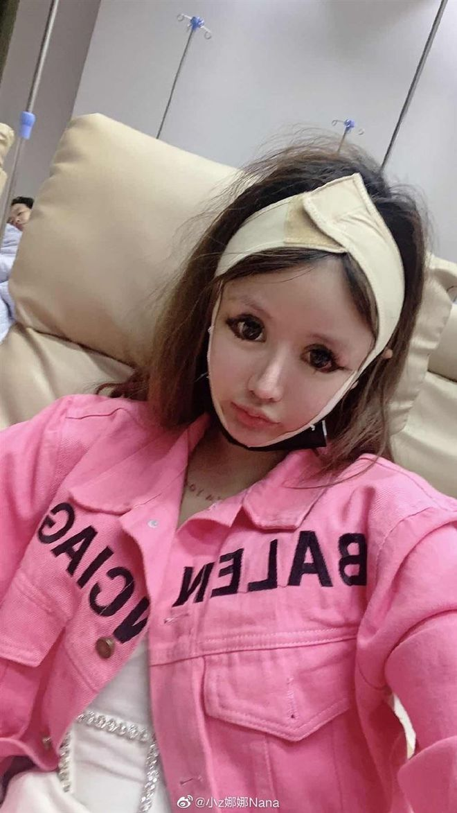 """Hotgirl phẫu thuật thẩm mỹ hơn 100 lần tiết lộ ảnh mặt mộc chưa dao kéo và khuyên fan: """"Em mới 8 - 9 tuổi, đừng học theo chị"""" - Ảnh 4."""