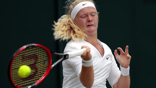 Tay vợt nữ dị nhân ở Australian Open 2021, chỉ có 8 ngón tay và 7 ngón chân - ảnh 2