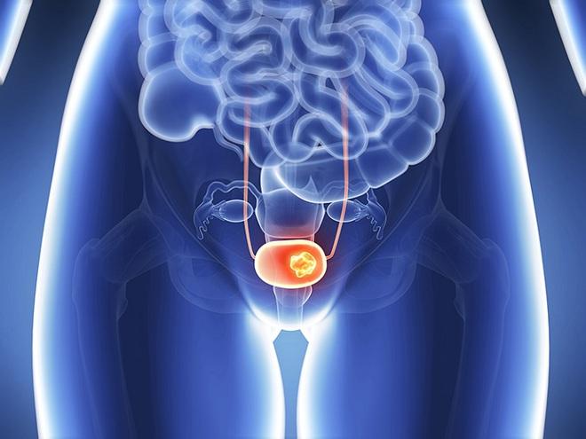 Thường xuyên nhịn tiểu sẽ khiến bạn phải đối mặt với 3 vấn đề sức khỏe vô cùng tai hại - ảnh 3