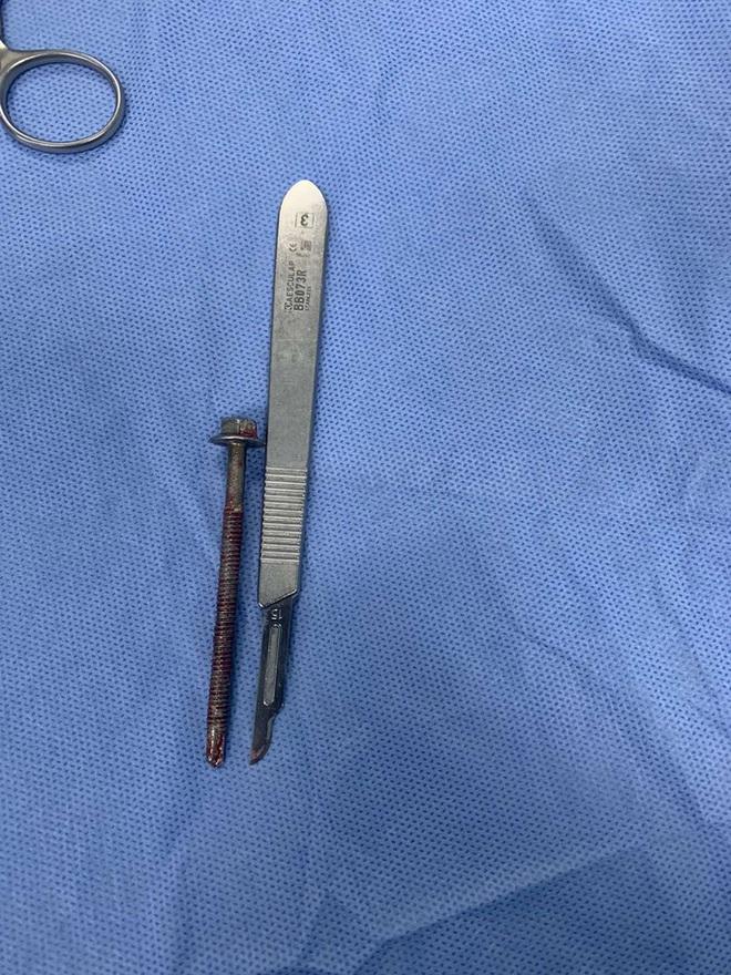 Người đàn ông đến bệnh viện với chiếc ốc vít dài 6cm xoáy vào giữa dương vật - ảnh 1