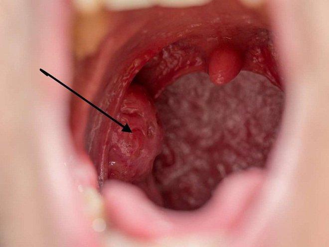 Tìm hiểu về ung thư hạ họng: căn bệnh nghệ sĩ Giang Còi đang mắc xuất phát từ những thói quen mà ai cũng có khả năng phạm phải - Ảnh 3.