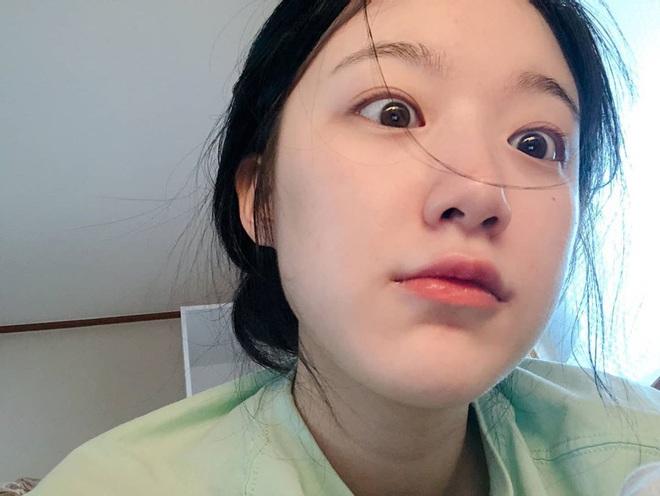 Đọ mặt mộc của dàn mỹ nhân Hàn: Song Hye Kyo vẫn là huyền thoại, hình ảnh không son phấn mới nhất của Suzy lại khiến dân tình phát sốt - ảnh 16