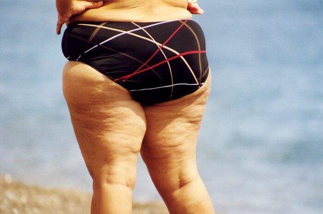 Nữ giới bắt đầu lão hóa sẽ có 3 xệ, 2 to và 1 nặng mùi trên cơ thể, nếu không có cái nào thì bạn vẫn còn trẻ chán! - ảnh 3
