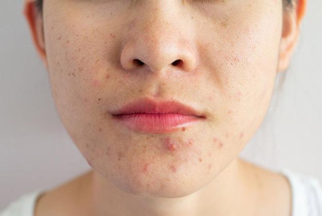 Con gái mắc bệnh phụ khoa thường có 3 triệu chứng nổi quanh miệng, số 2 nhiều người dễ gặp phải - ảnh 3