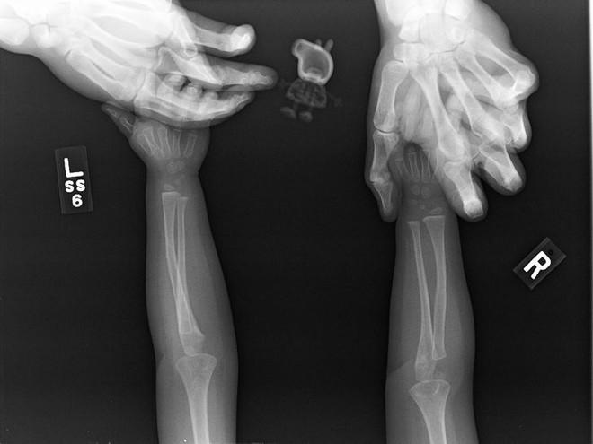 """Những hình chụp X quang kỳ lạ nhưng thú vị sau đây sẽ cho bạn cơ hội nhìn mọi vật từ """" tận sâu bên trong"""", thử xem bạn nhìn ra là gì không nhé? - Ảnh 2."""
