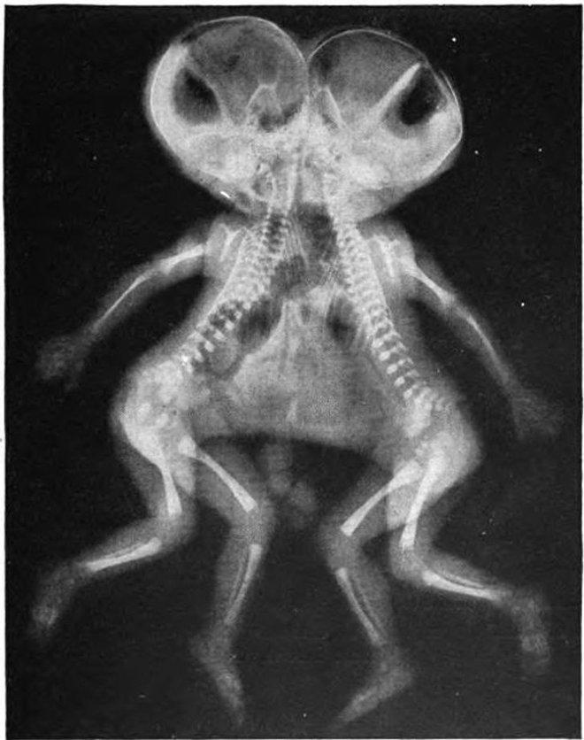 """Những hình chụp X quang kỳ lạ nhưng thú vị sau đây sẽ cho bạn cơ hội nhìn mọi vật từ """" tận sâu bên trong"""", thử xem bạn nhìn ra là gì không nhé? - Ảnh 10."""