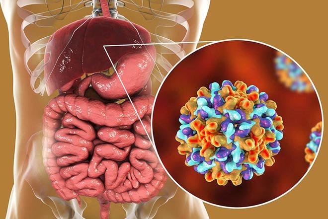 Nam giới nên chủ động đi kiểm tra 4 cơ quan sau đây thường xuyên để tầm soát nguy cơ mắc bệnh ung thư từ sớm - Ảnh 2.
