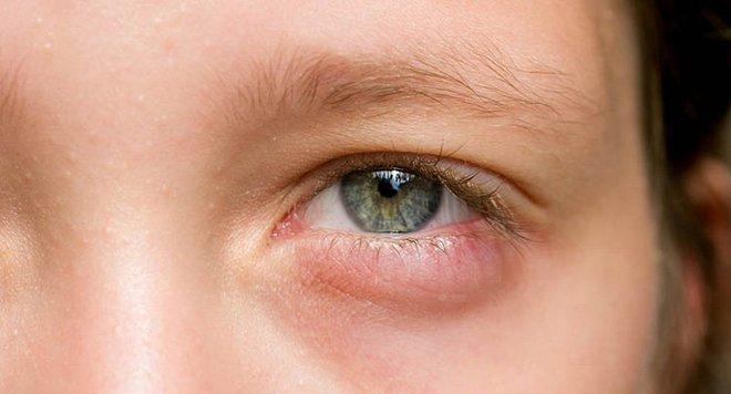 Cục máu đông đang hình thành khi cơ thể xuất hiện 2 cơn đau, 2 vết đỏ và 2 nếp nhăn bất thường - ảnh 2