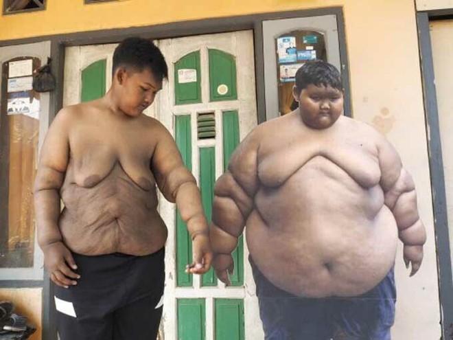 Cậu bé béo nhất thế giới nặng gần 200kg gây choáng với ngoại hình mới chỉ sau 4 năm giảm cân, nhìn hình không ai dám tin là cùng một người - ảnh 9