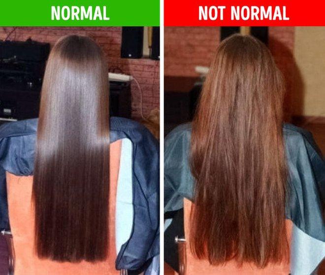 8 điều bất thường trên mái tóc ngầm cảnh báo nhiều vấn đề sức khỏe mà bạn chẳng hay biết - ảnh 1