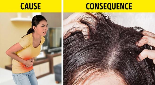 8 điều bất thường trên mái tóc ngầm cảnh báo nhiều vấn đề sức khỏe mà bạn chẳng hay biết - ảnh 2