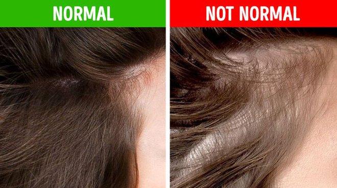 8 điều bất thường trên mái tóc ngầm cảnh báo nhiều vấn đề sức khỏe mà bạn chẳng hay biết - ảnh 4