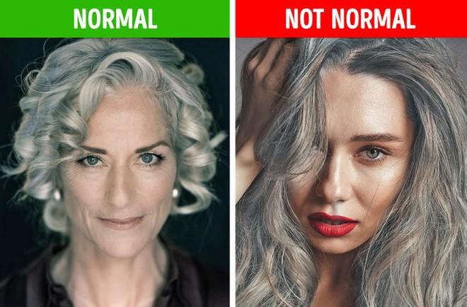 8 điều bất thường trên mái tóc ngầm cảnh báo nhiều vấn đề sức khỏe mà bạn chẳng hay biết - ảnh 6