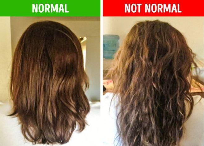 8 điều bất thường trên mái tóc ngầm cảnh báo nhiều vấn đề sức khỏe mà bạn chẳng hay biết - ảnh 8