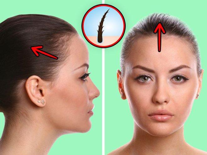 6 vấn đề sức khỏe mà con gái phải đối mặt nếu duy trì thói quen buộc tóc đuôi ngựa thường xuyên - ảnh 2