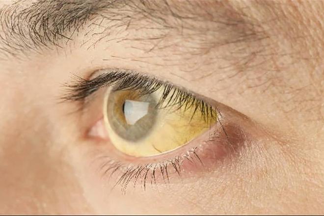 Người thức khuya thường xuyên dễ gặp phải 3 vấn đề trên da, đây cũng là dấu hiệu cảnh báo gan không ổn chút nào - Ảnh 2.