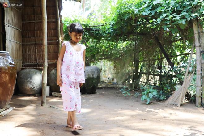 Nước mắt người mẹ có con gái bị teo gan, lá lách to đang chết mòn vì gia cảnh cùng cực: Chỉ sợ nó bỏ mình mà đi - ảnh 3