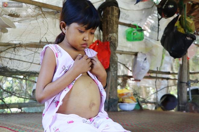 Nước mắt người mẹ có con gái bị teo gan, lá lách to đang chết mòn vì gia cảnh cùng cực: Chỉ sợ nó bỏ mình mà đi - ảnh 14