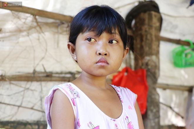 Nước mắt người mẹ có con gái bị teo gan, lá lách to đang chết mòn vì gia cảnh cùng cực: Chỉ sợ nó bỏ mình mà đi - ảnh 9