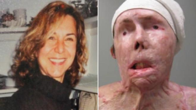Bị chồng cũ tạt axit hủy hoại gương mặt thành quái vật, người phụ nữ được phẫu thuật ghép mặt từ người chết cho kết quả đầy ngỡ ngàng - ảnh 3