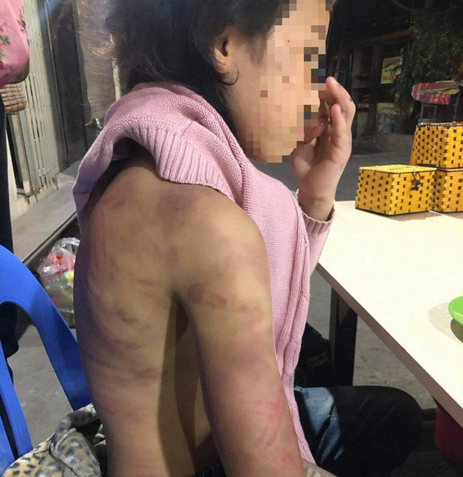 Bé gái 12 tuổi ở Hà Nội bị mẹ bạo hành, cha dượng xâm hại hiện giờ ra sao? - ảnh 2