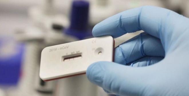 Nga thử nghiệm thêm thuốc đặc trị Covid-19, Đức bán bộ tự xét nghiệm nhanh - ảnh 2