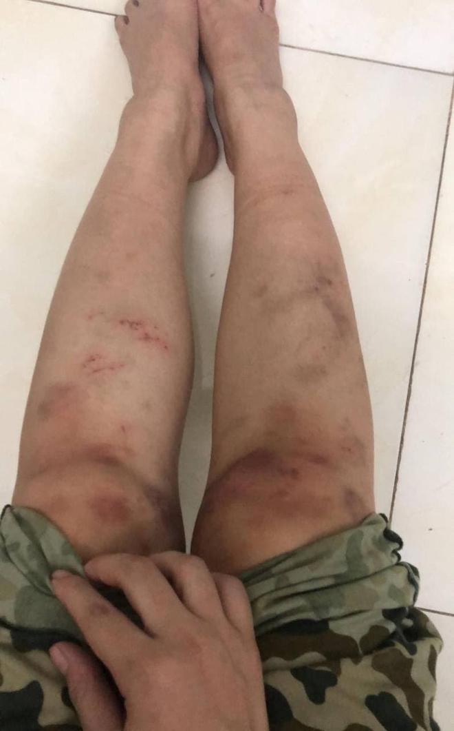 Dương Hoàng Yến chia sẻ hình ảnh đôi chân đầy hoa văn tím ngắt khi đi nhập ngũ khiến ai nấy đều xót xa - ảnh 3
