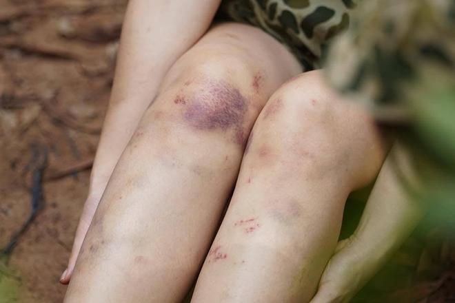 Dương Hoàng Yến chia sẻ hình ảnh đôi chân đầy hoa văn tím ngắt khi đi nhập ngũ khiến ai nấy đều xót xa - ảnh 4