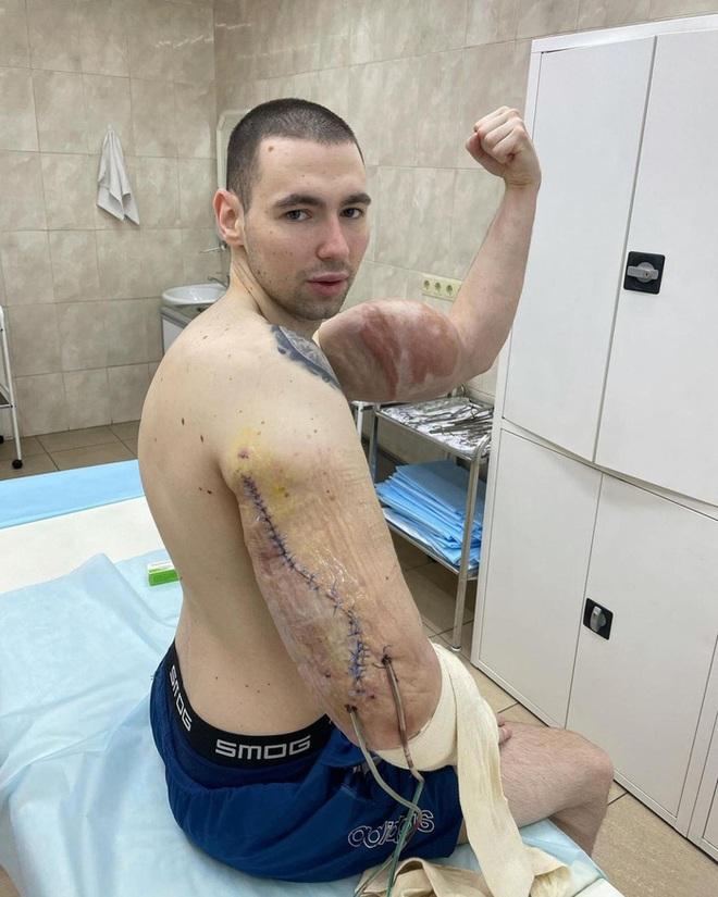 Popeye nước Nga buộc phải phẫu thuật sau khi cánh tay kinh dị bị thối vì tiêm hóa chất kích thích - ảnh 1