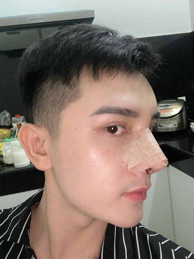 Hành trình lột xác gây chấn động báo Anh của chàng trai Hưng Yên, 25 tuổi đã trải qua hơn 20 lần PTTM khiến cả họ không nhận ra - ảnh 4