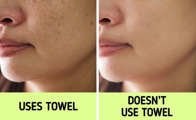 Nếu biết lý do khiến làn da ngày càng nhăn nheo mụn nhọt, bạn sẽ cạch đến già việc dùng khăn lau mặt - ảnh 2