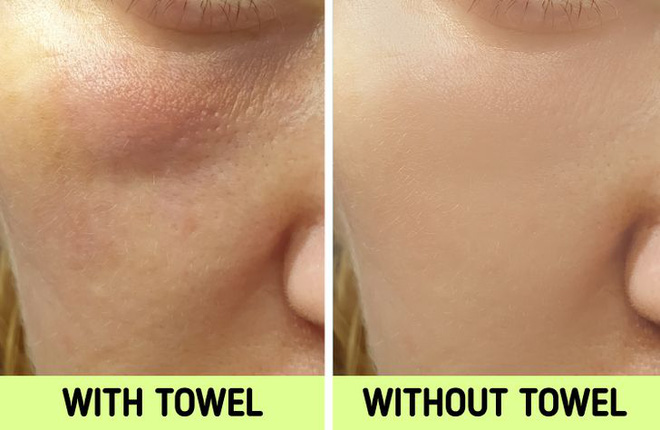 Nếu biết lý do khiến làn da ngày càng nhăn nheo mụn nhọt, bạn sẽ cạch đến già việc dùng khăn lau mặt - ảnh 6