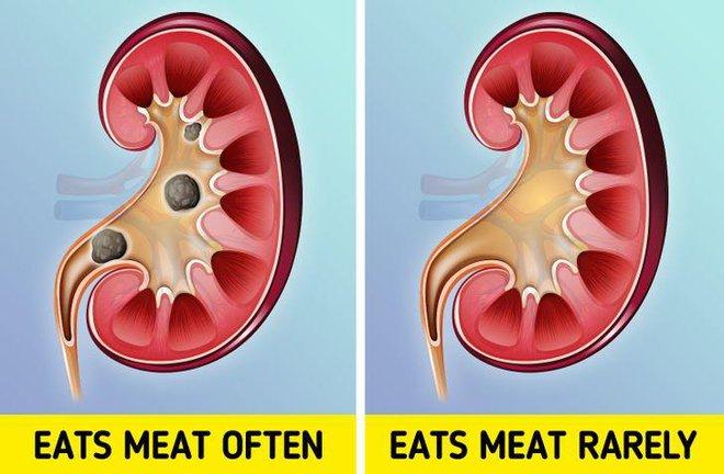 Team nghiện thịt nên dè chừng với 10 vấn đề sức khỏe có thể phải đối mặt - ảnh 1