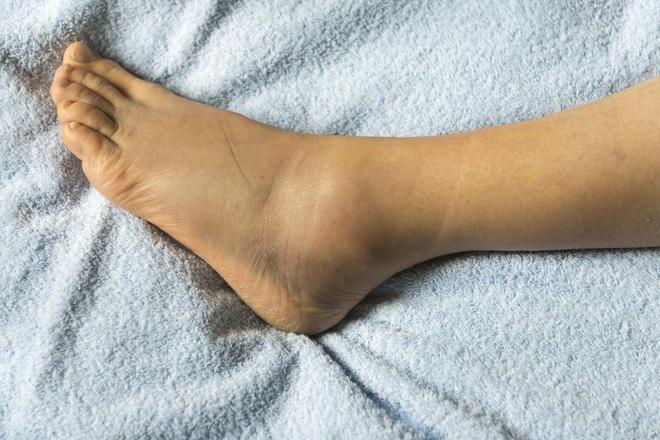 4 tình trạng xảy ra ở bàn chân ngầm cảnh báo nhiều vấn đề sức khỏe nghiêm trọng mà bạn không nên chủ quan - ảnh 1