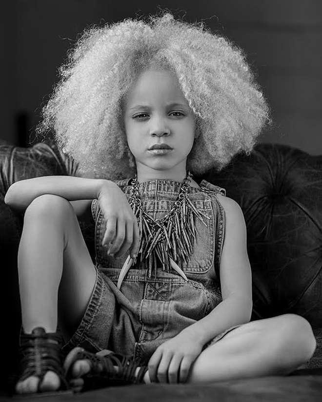 8 người sinh ra với màu da lạ kỳ chẳng giống ai nhưng lại đẹp đến mê hoặc: Từ búp bê Barbie đen đến cô gái bạch tạng đẹp nhất thế giới - ảnh 10