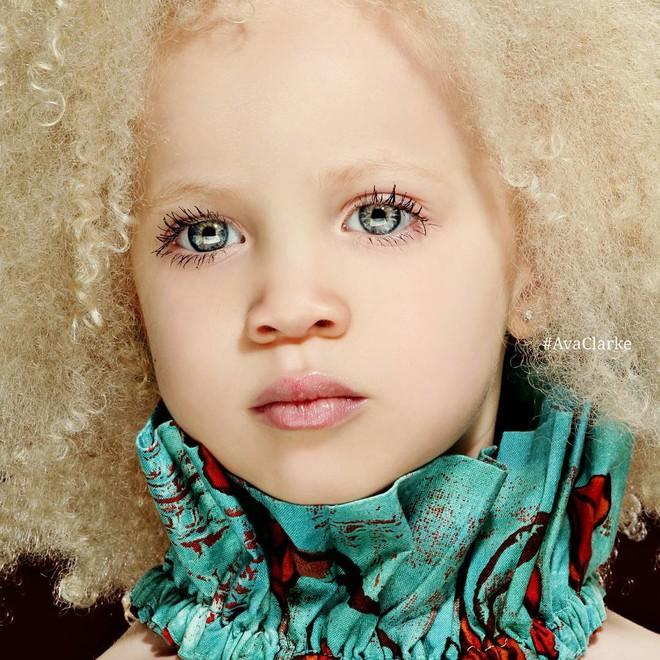 8 người sinh ra với màu da lạ kỳ chẳng giống ai nhưng lại đẹp đến mê hoặc: Từ búp bê Barbie đen đến cô gái bạch tạng đẹp nhất thế giới - ảnh 9