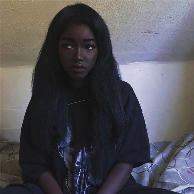 8 người sinh ra với màu da lạ kỳ chẳng giống ai nhưng lại đẹp đến mê hoặc: Từ búp bê Barbie đen đến cô gái bạch tạng đẹp nhất thế giới - ảnh 16