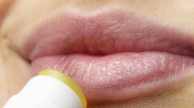 Người gan kém thường có 4 biểu hiện bất thường ở quanh miệng, nếu bạn không có thì xin chúc mừng - ảnh 2